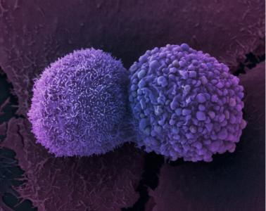 Фермент APOBEC3B связан с раковыми заболеваниями