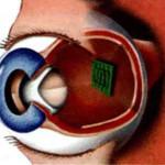 Новый имплантат сетчатки дает зрение девяти слепым людям