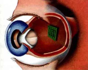 Новый имплантат сетчатки