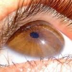 Ученые разработали и запатентовали новый вид протеза сетчатки глаза